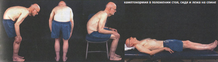 Постуральные нарушения