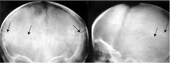 перелом костей затылка черепа