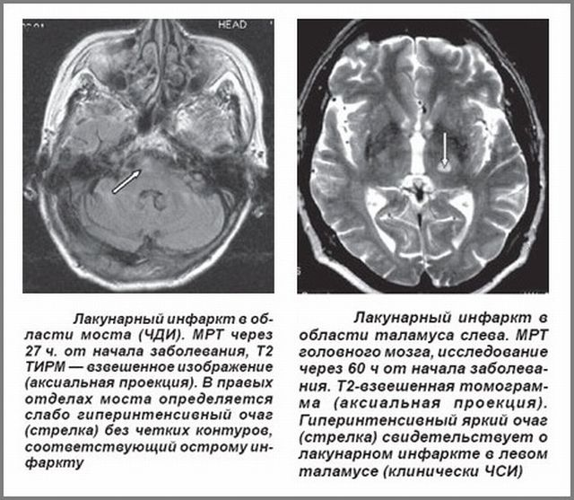 Инфаркт на МРТ
