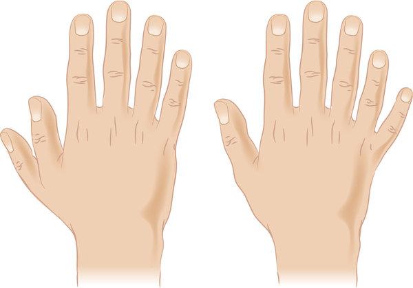 Лишние пальцы при синдроме Жубера