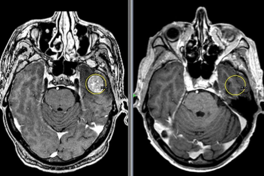 Метастазы на рентгеновском снимке
