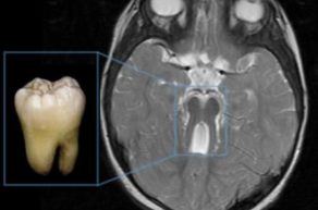 синдром молярного зуба