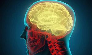 Травматическое повреждение мозга