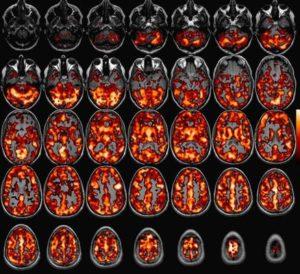 МРТ с контрастным веществом