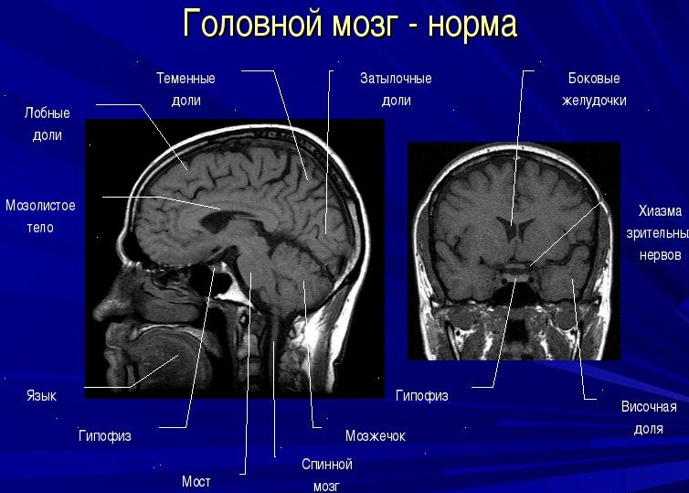 снимок мрт головного мозга норма