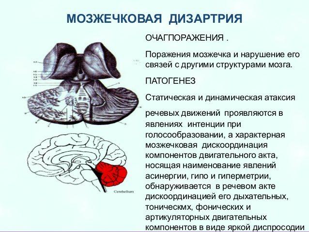патогенез дизартрии