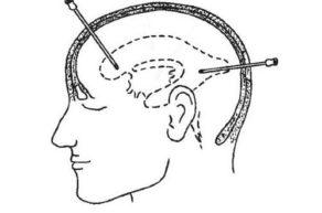 пункция головного мозга