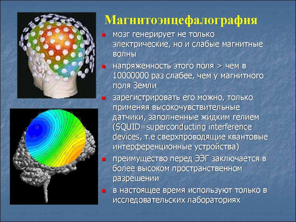 Сущность метода МЭГ