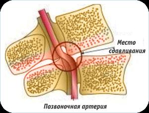 Повреждение артерии вследствие остеохондроза
