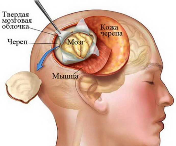 Простая биопсия мозга