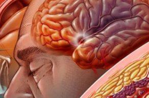 тромболизис при инсульте