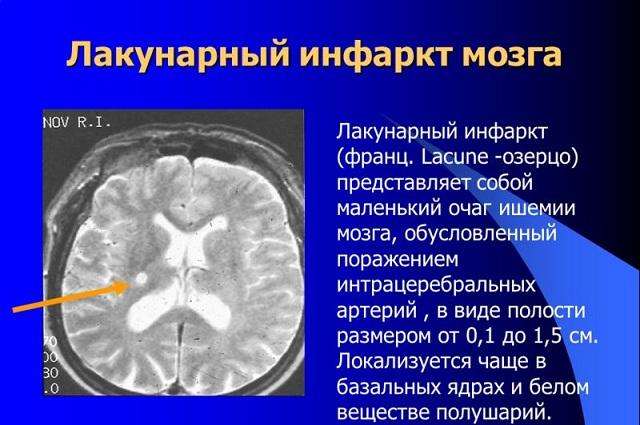 Лакунарный инфаркт на МРТ