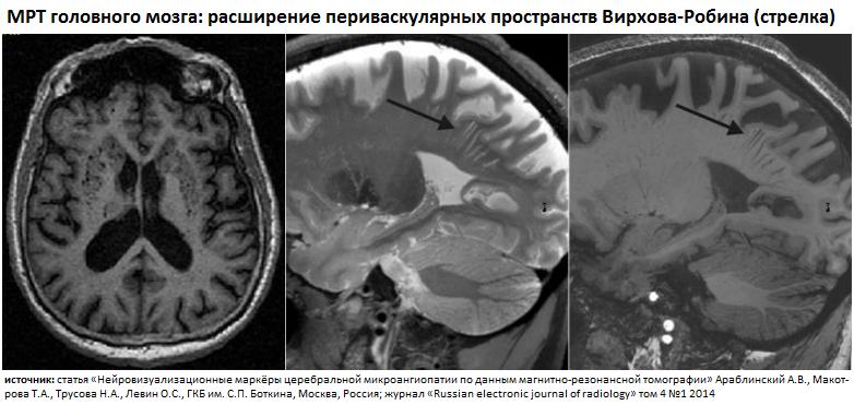 Криблюры на МРТ-снимках