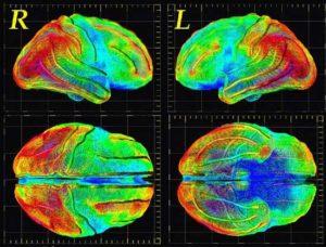нейровизуализация