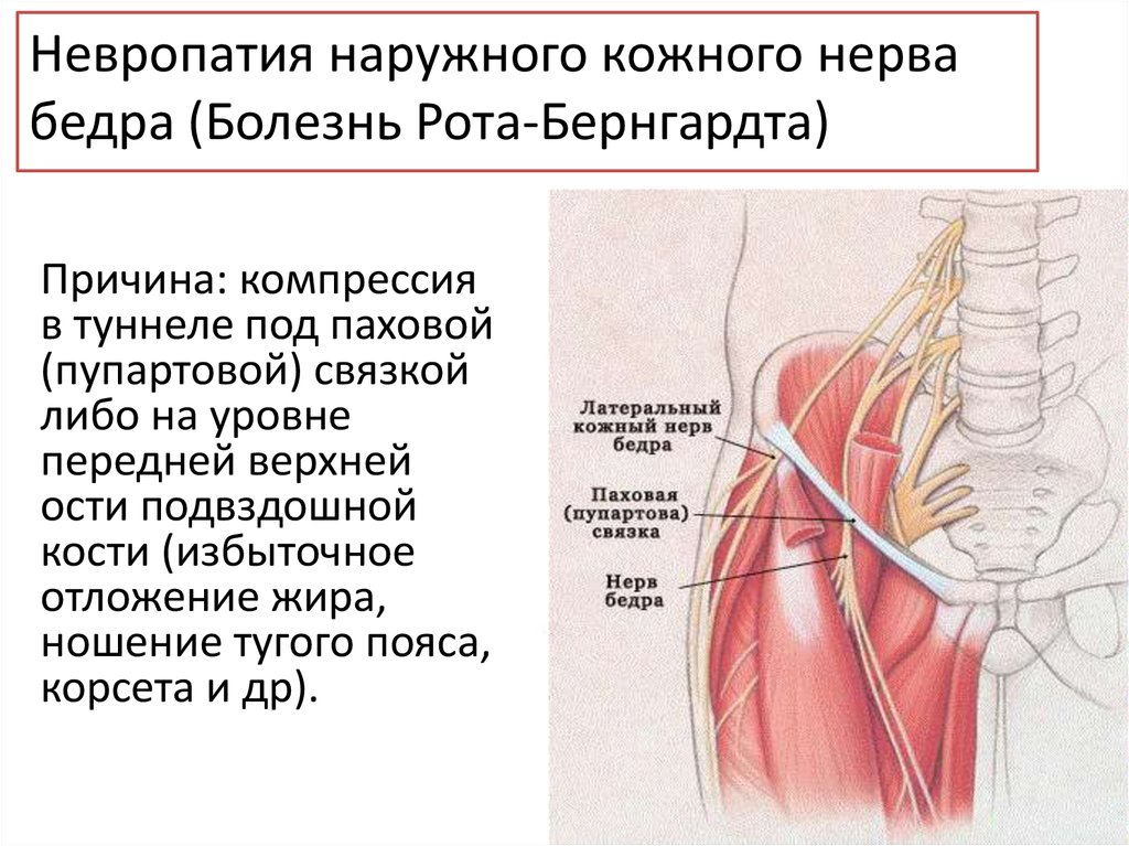 Невропатия кожного нерва бедра