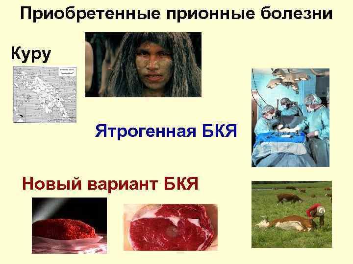 Прионные болезни