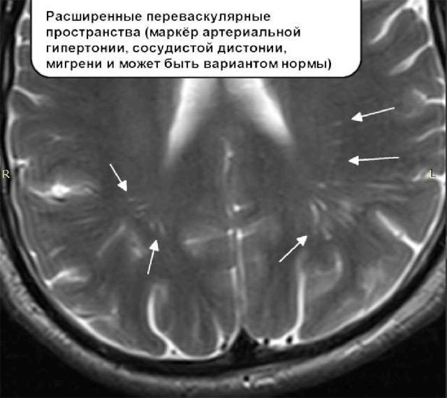 признаки расширенных периваскулярных пространств