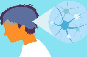 рассеянный склероз нарушение мозга